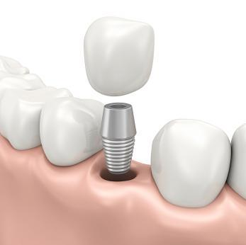 Dental implant diagram | Dentist Baton Rouge LA