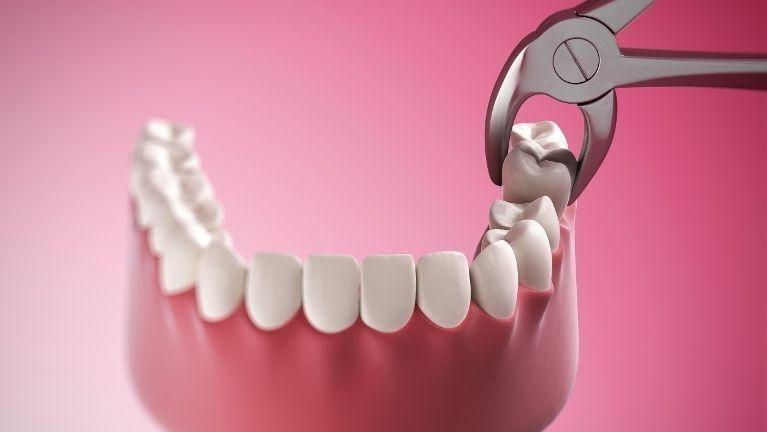 Baton Rouge La Dentist Wisdom Teeth Extraction
