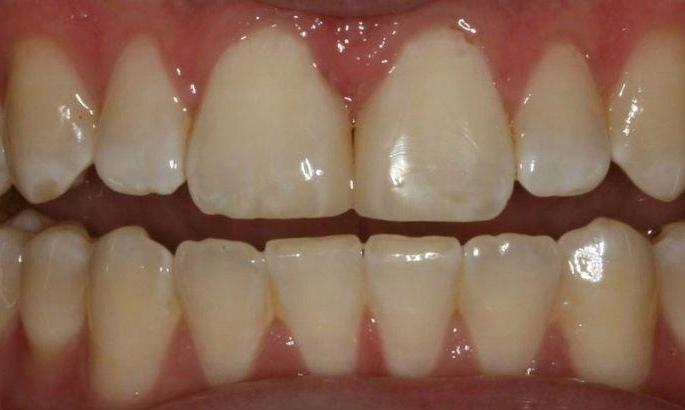 Diastema-Treatment-After-Image