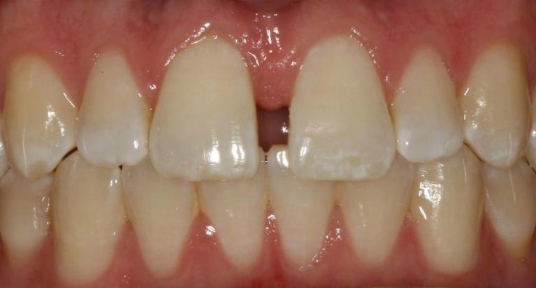 Diastema-Treatment-Before-Image