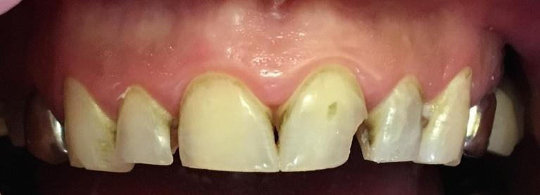 Esthetic-Crowns-Before-Image